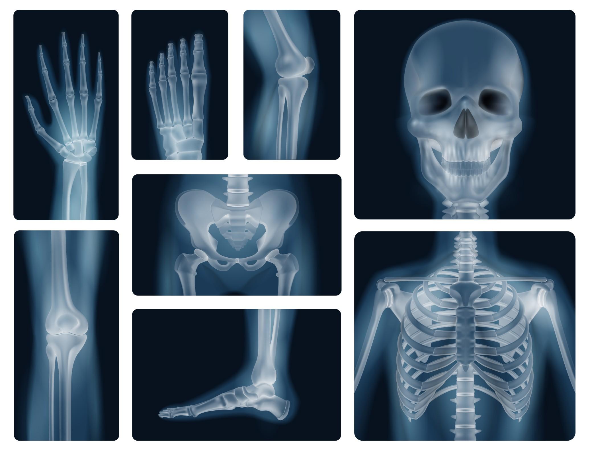 Prewencja iterapia osteoporozy wgabinecie dietetyka